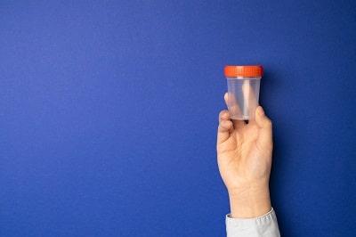 דרך לאבחון החיידק ההיקובקטר היא בדיקת צואה המופיעה בתמונה