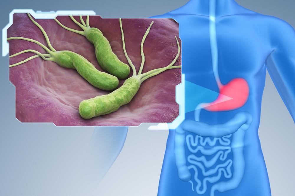 הדמיה של חיידק הליקובקטר בקיבה